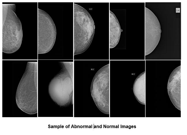 Mammogram Image Database Sethu Institute Of Technology